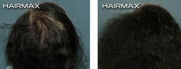 טיפול טבעי לנשירת שיער