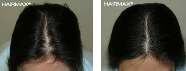 איך למנוע נשירת שיער אצל נשים