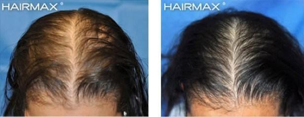 נשירת שיער נשים טיפול