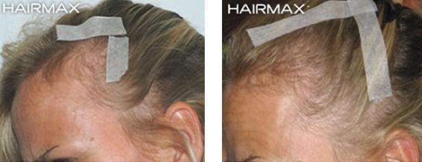 נשירת שיער נשים טיפול טבעי