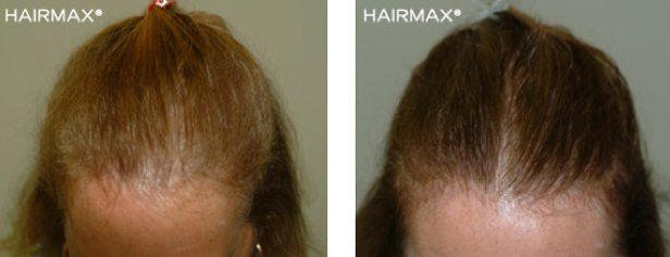 גורמים לנשירת שיער אצל נשים