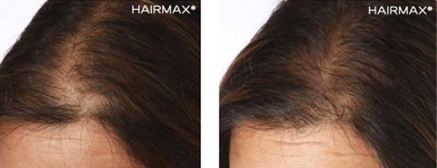 נשירת שיער אצל נשים בגיל המעבר