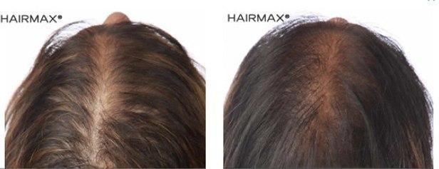 נשירת שיער נשים ויטמינים