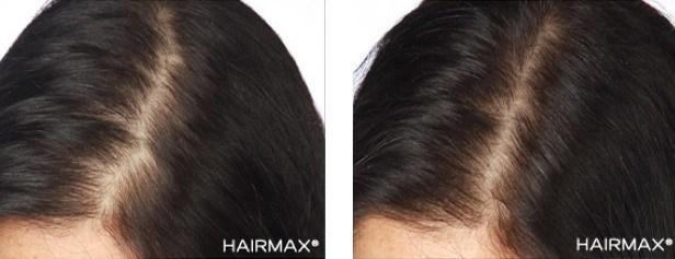 טיפול בנשירת שיער נשים