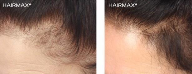 מפרצים בשיער