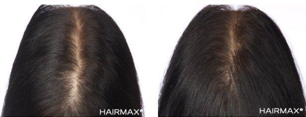 טיפולי נשירת שיער