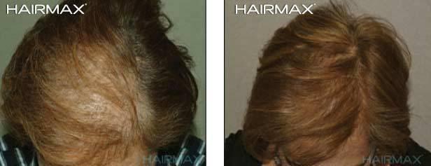 התדלדלות שיער נשים