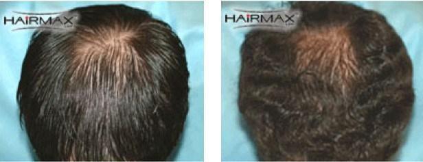 פתרון לנשירת שיער לגברים