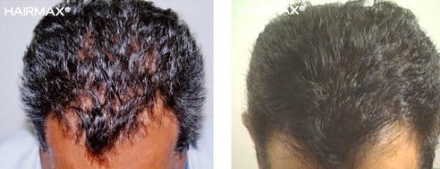 איך לטפל בנשירת שיער באופן טבעי