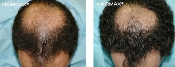 נשירת שיער אצל גברים טיפול