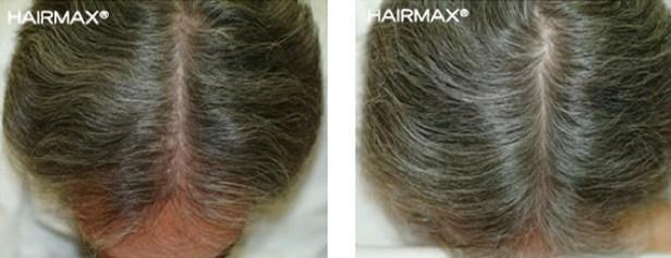 טיפול בנשירת שיער אצל גברים