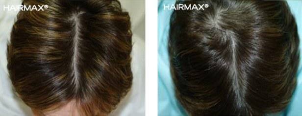 מניעת נשירת שיער אצל גברים
