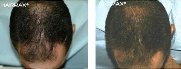 התדלדלות שיער גברים