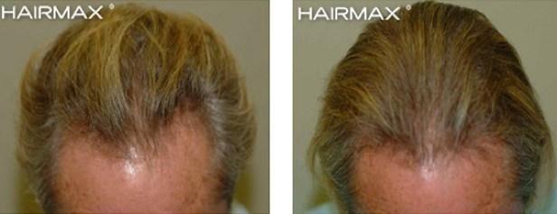 סיבות לנשירת שיער אצל גברים