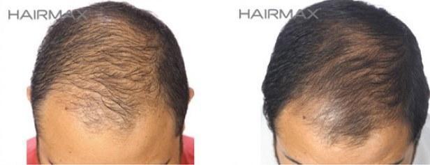 גברים מאבדים שיער