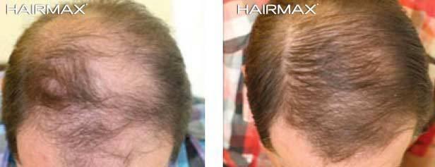 צמיחת שיער גברית בעזרת היירמקס