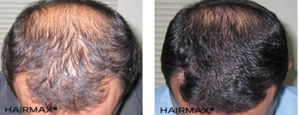 עצירת נשירת שיער גברית בעזרת היירמקס