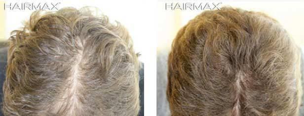 עיבוי שיער בעזרת היירמקס