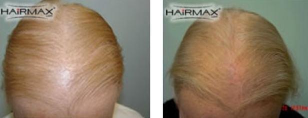 מה גורם לנשירת שיער אצל נשים