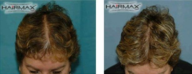 איך מטפלים בנשירת שיער אצל נשים