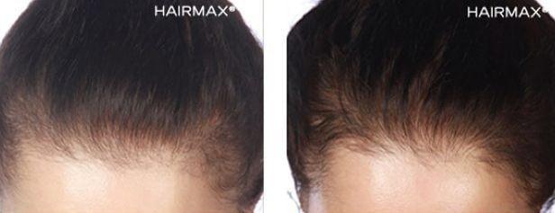 טיפול בנשירת שיער אצל נשים