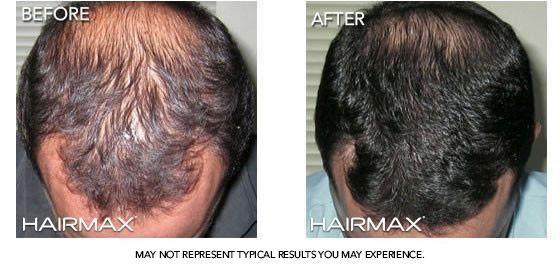לפני ואחרי שימוש בהיירמקס לצמיחת שיער ועצירת התקרחות