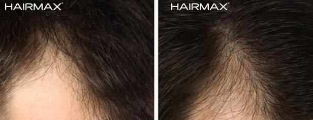 צמיחת שיער בעזרת היירמקס