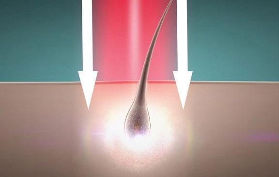 קרן לייזר ממוקדת - רק בהיירמקס לעצירת נשירת שיער