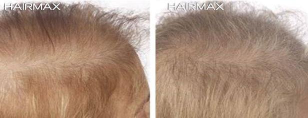 טיפול נגד נשירת שיער