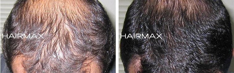 צמיחת שיער בגברים בעזרת היירמקס
