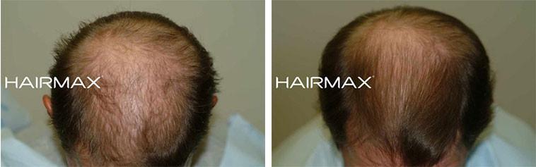 עצירת נשירת שיער בגברים בעזרת היירמקס