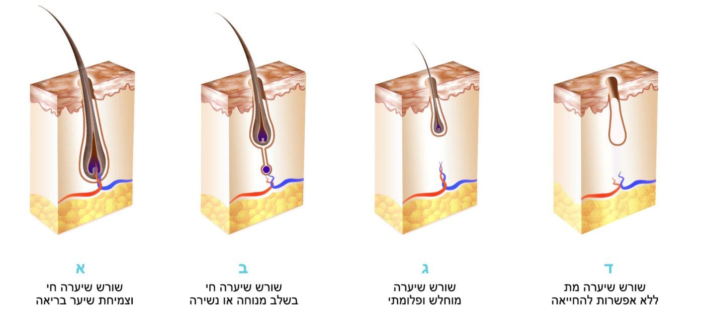 שלבי התנוונות של שורשי שיער