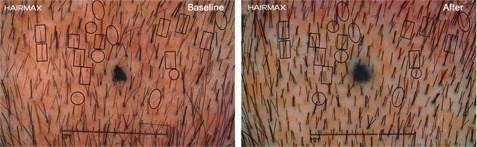 צילום מיקרוסקופי של תוצאות שימוש במכשיר היירמקס להצמחת שיער ועצירת התקרחות