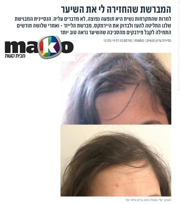 מאמר מתוך אתר מאקו לנסיינית היירמקס בעצירת נשירת שיער