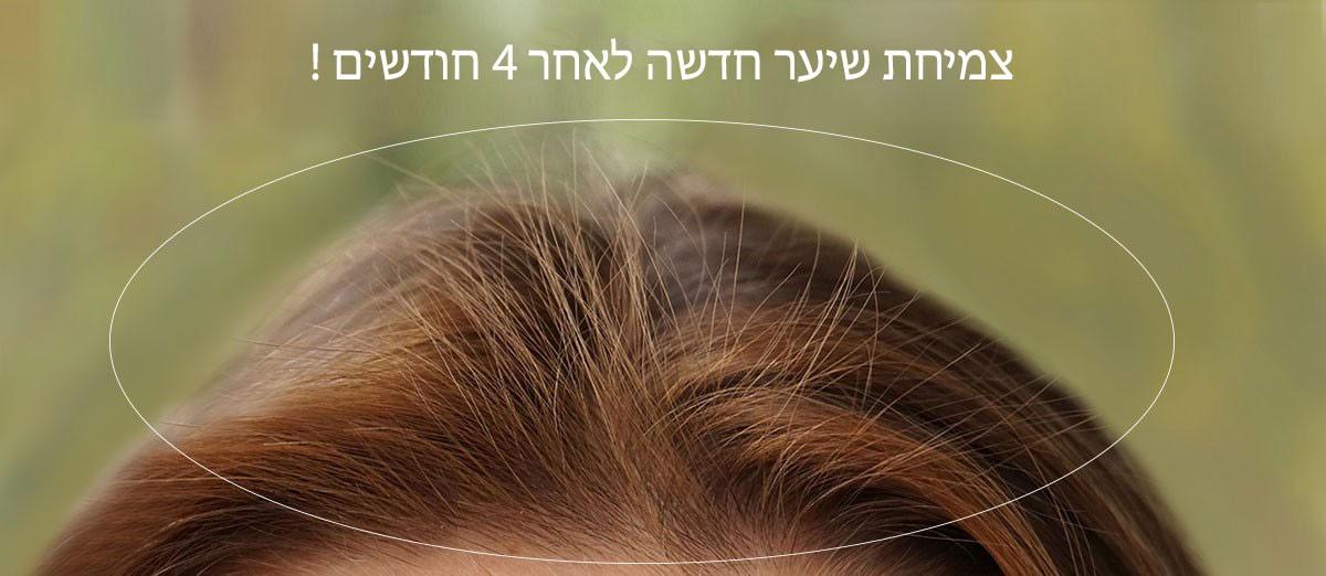 שיער חדש נולד לאחר 4 חודשים