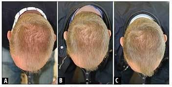 הצמחת שיער בעזרת היירמקס