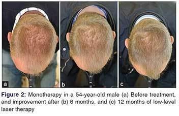 עצירת נשירה וצמיחת שיער לאורך שנה של טיפול במכשיר היירמקס
